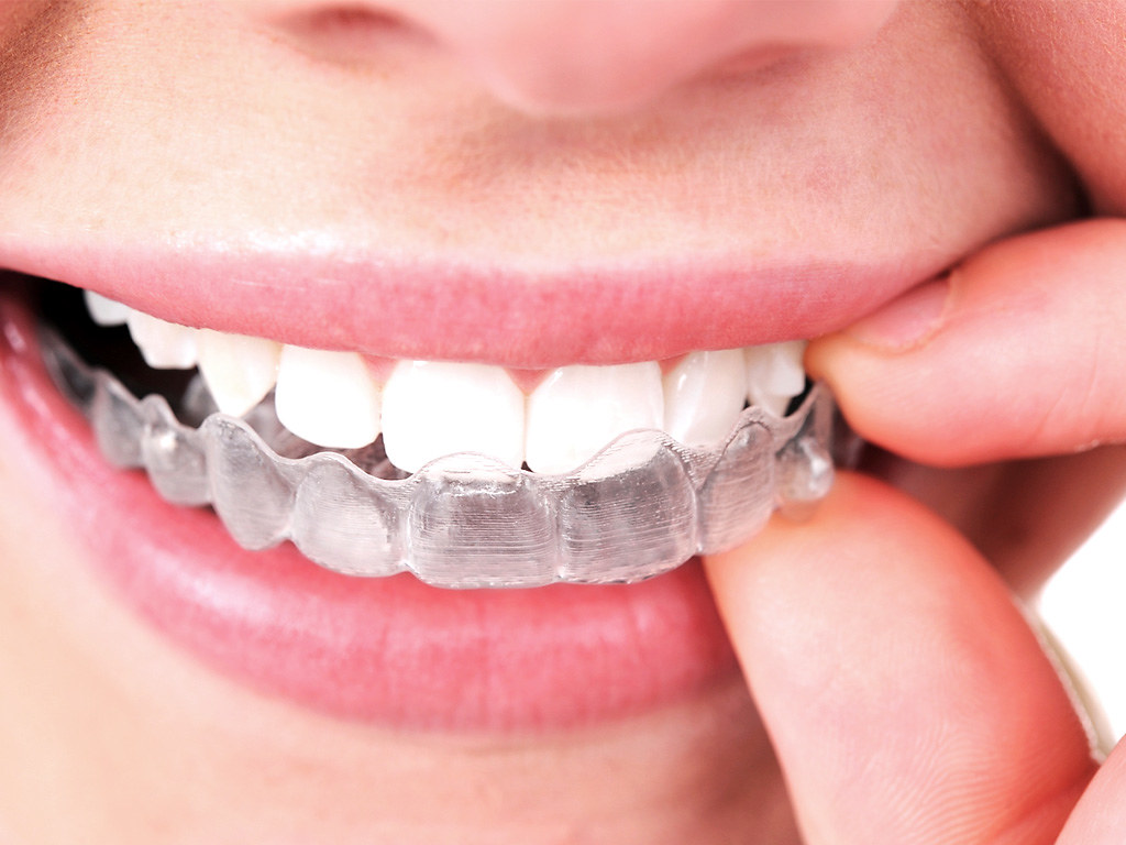 Age Dental Revolution